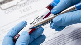 382 az új fertőzött, elhunyt 64 beteg