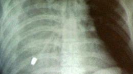 Csavarfej a tüdőben, csírázó szotyi a hörgőnél