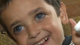 Különleges szembetegségben szenved egy somogysárdi kisfiú